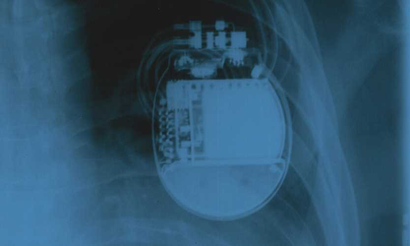 Abbott releases new round of cyber updates for St. Jude pacemakers