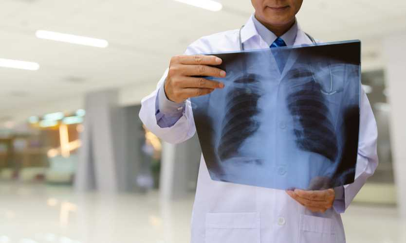 Workplace fumes linked to signs of early lung disease
