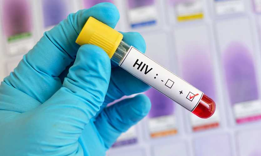 Insurer does not have to defend HIV claims in porn industry