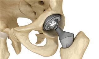 Appeals court reinstates liability litigation against hip implant maker Smith & Nephew Lori Spellman FDA