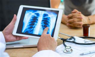 Radiology errors a top driver of medical malpractice claims Coverys report