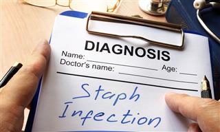 staph infection