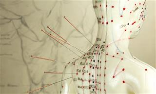 Pinning down acupuncture rules for workers compensation