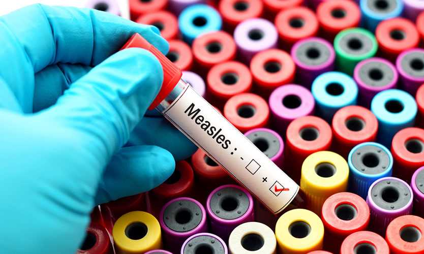 Measles test